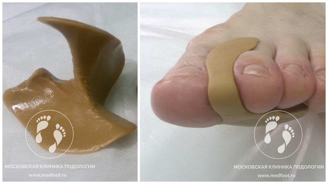 Вальгусная деформация большого пальца стопы лечение симптомы причины