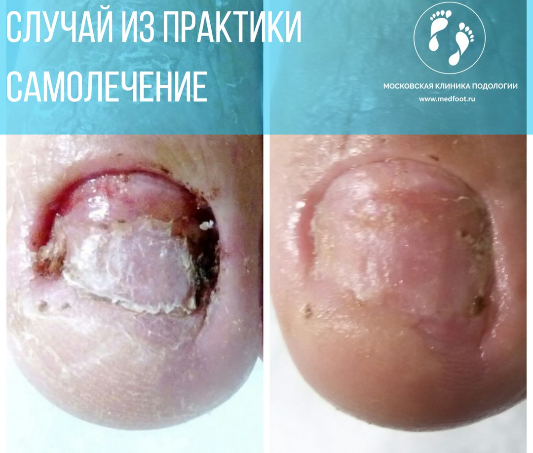 Подолог в Королёве, Королев, Юбилейный, подиатр, подиатрия, подология, грибок, лечение, вросший ноготь, мозоли, мужскрй педикюр, медицинский педикюр в Москве, подолог Москва
