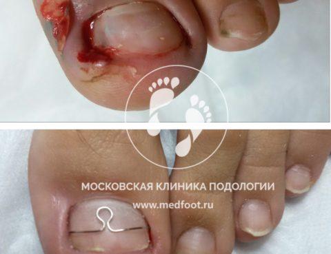 Онихокриптоз (Врастающий ноготь)