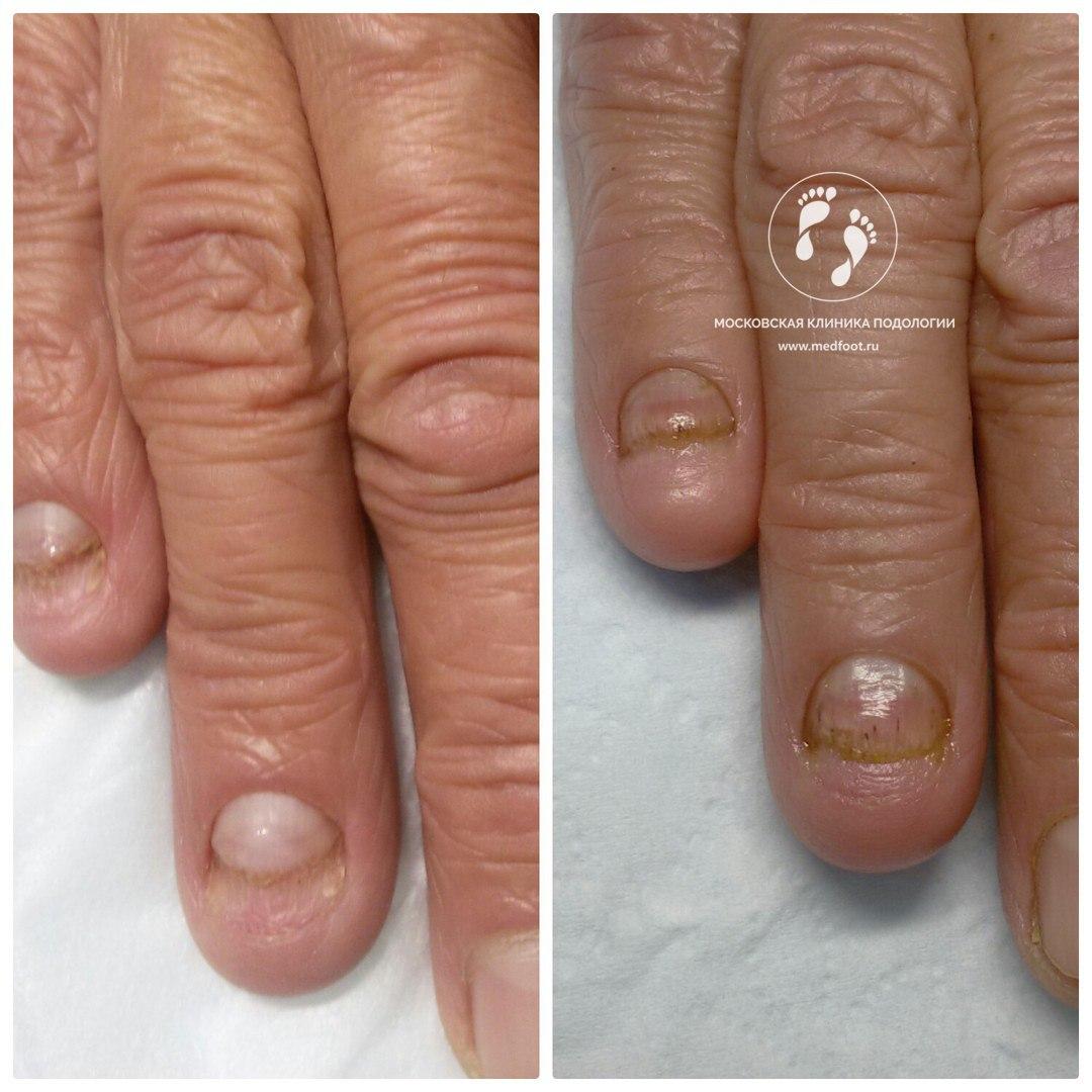 Грибок на ногтях восстановится ноготь