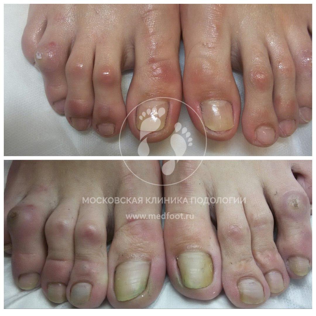 Мозоли на фалангах пальцев стопы