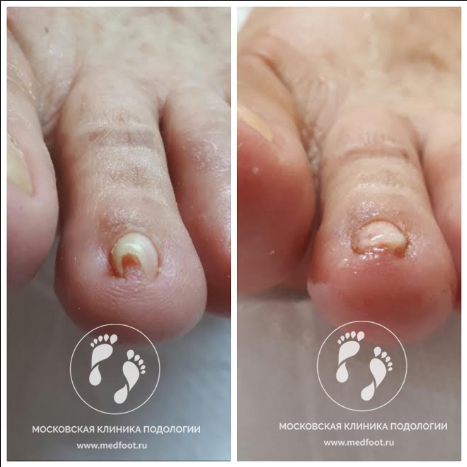 травма ногтевой пластины