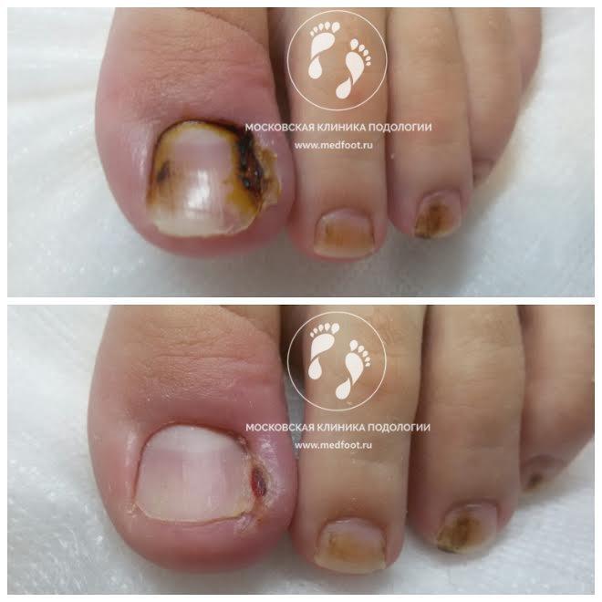 Корень аира при грибке ногтей отзывы