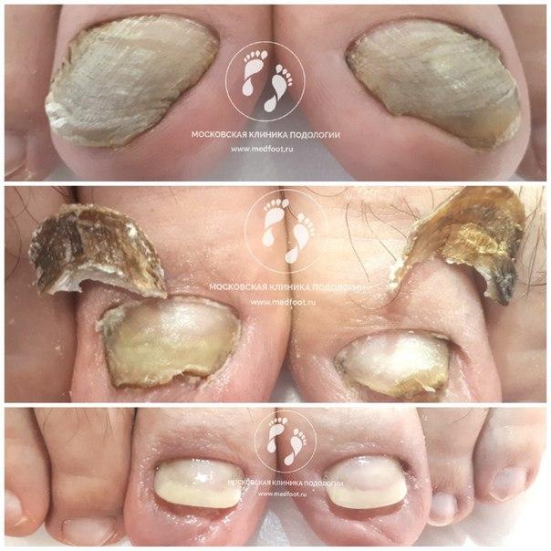 протезирование ногтей москва