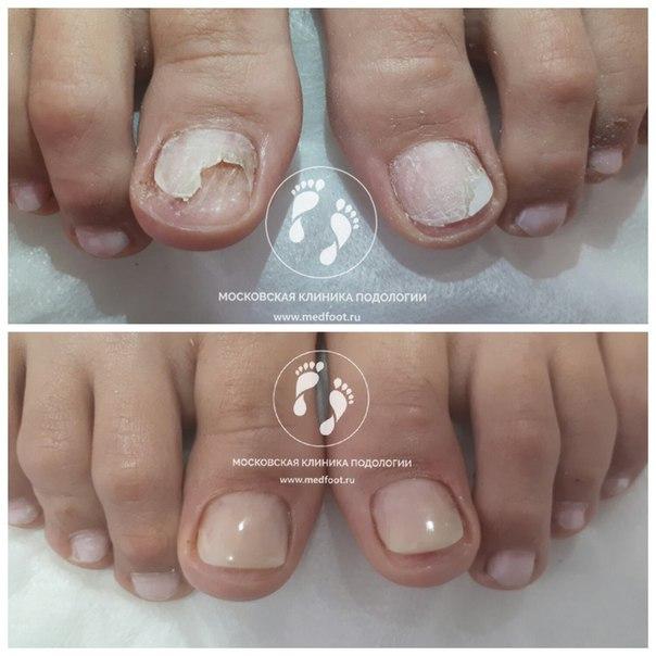 протезированией ногтей клиника