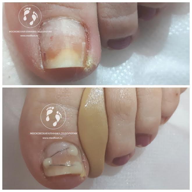 врастания ногтя на большом пальце