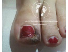 инфекция большого пальца ноги во время беременности. врач подолог. Москвоская Клиника Подологии.