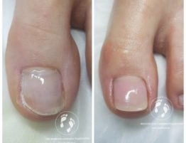 протезирование ногтевых пластин