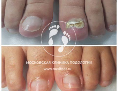 Королев, Юбилейный, подиатр, подиатрия, подология, грибок, лечение, вросший ноготь, мозоли, мужскрй педикюр, медицинский педикюр в МосквеПодолог в Королёве, Королев, Юбилейный, подиатр, подиатрия, подология, грибок, лечение, вросший ноготь, мозоли, мужскрй педикюр, медицинский педикюр в Москве
