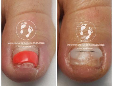 Врастание ногтевой пластины