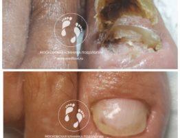 протезирование онихолизис