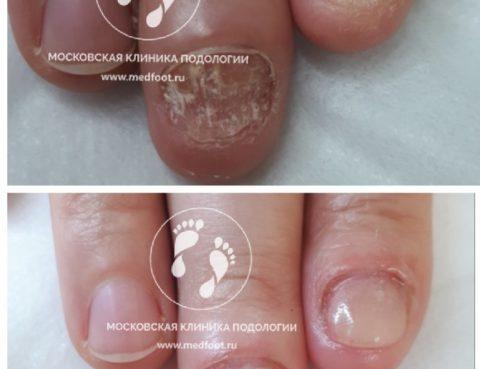 псориаз на руках и ногтях
