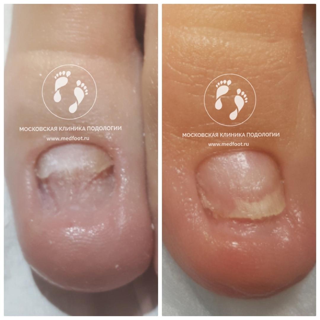 протезирование ногтевой пластины