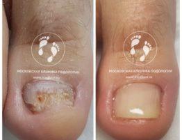 грибок ноготь на ноге
