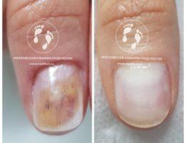 лечение ногтевой пластины