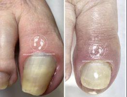 аппаратная обработка ногтей на ногах