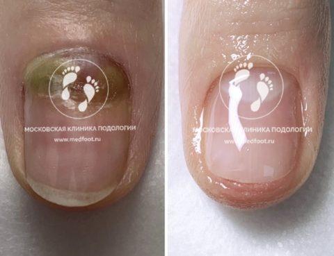 лечение ногтей на руках