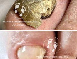 утолщение ногтевой пластины