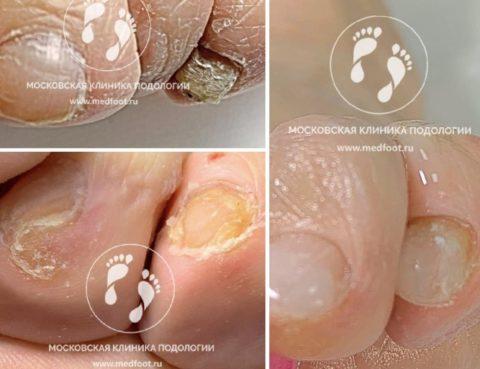 ногти при ониходистрофии